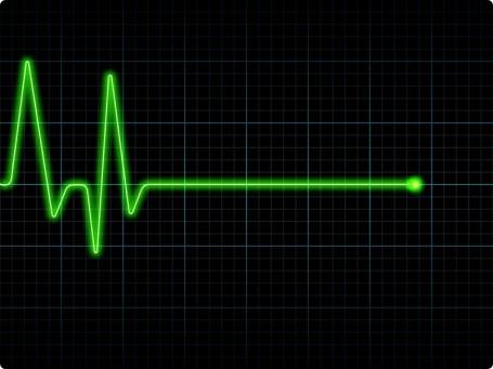 Resultado de imagem para linha reta eletrocardiograma